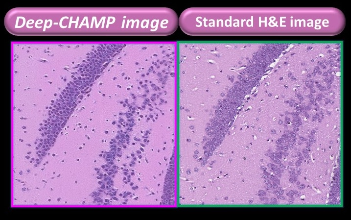 Comparison of the tissue images presented by the microscope developed by PhoMedics (left) and the FFPE tissue (right) – existing gold standard methodology for cancer cell imaging. The former can be displayed within 3 minutes while the latter takes about a week.