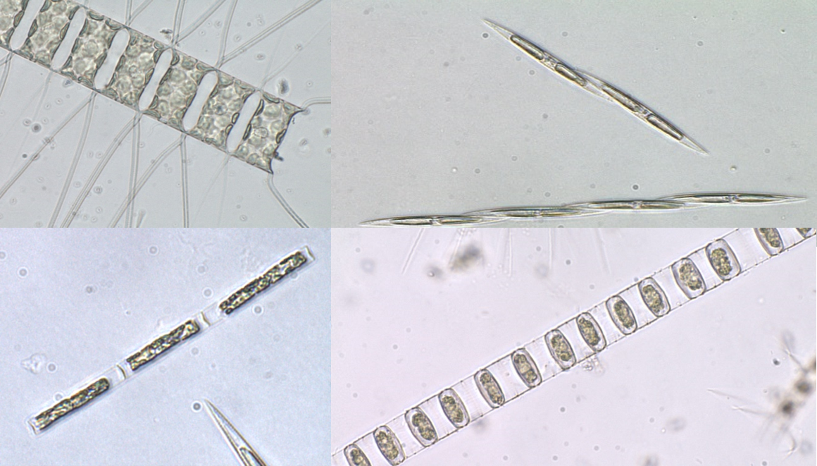 Microscopic images of diatoms