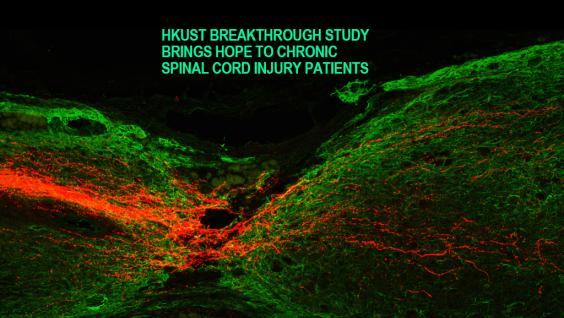 New scientific treatment gives hope to chronic spinal cord injury patients